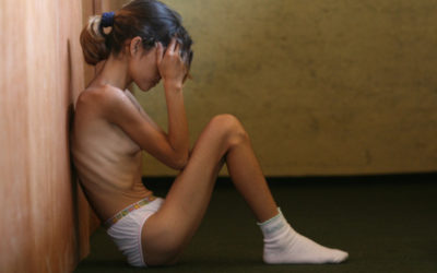 Terapeuta Familiar Creativo: Anorexia